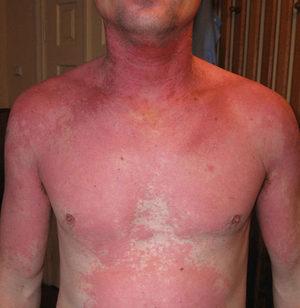 Проявление аллергии на алкоголь